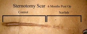 Sternotomy Scar Before and After Scarfade scare gel