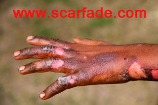 Burn Scars: Looking Below the Surface - Scarfade
