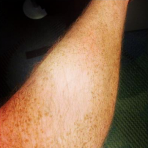 Evan's_Scar