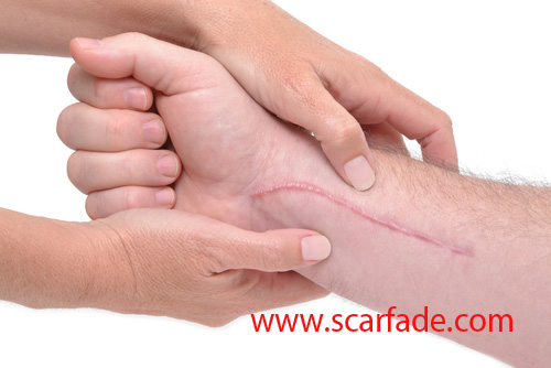 Stages of Scar Healing - Scarfade