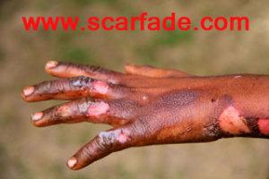 burn-scars