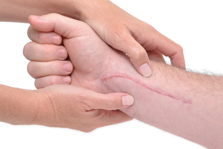 Why Scars Get Red and Itchy - Scarfade